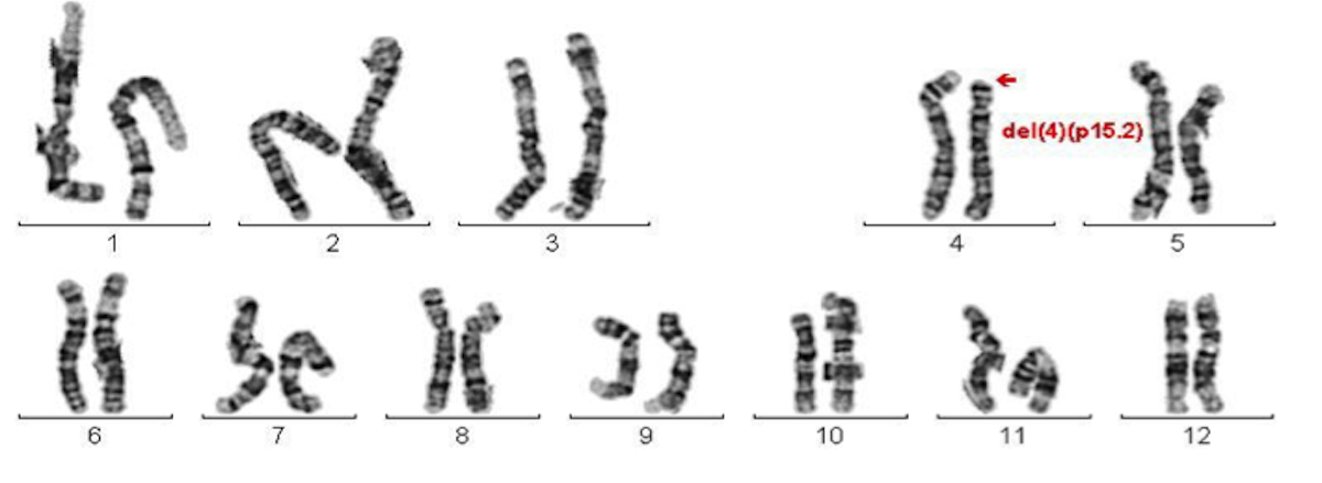 Praenatale Genetik Duesseldorf praenatal
